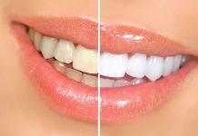 Sadece 5 Dakikada Dişlerinizdeki Plakları Nasıl Çıkarabilirsiniz?