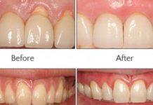 evdeki imkanlarla diş beyazlatmak
