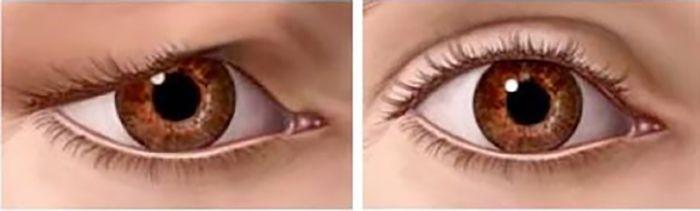 Düşük göz kapağını doğal olarak kaldırma yöntemi