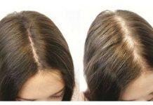 Saç dökülmesine karşı müthiş tarif