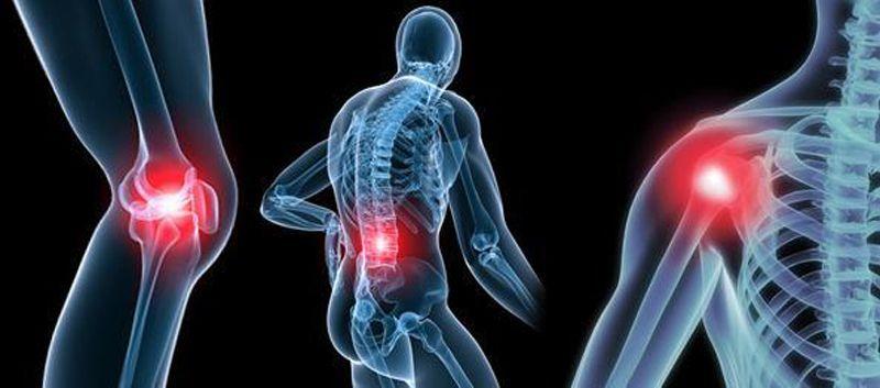 En Ağır Eklem Ağrıları 60 artrit ve Kireçlenme Üç Günde Yok Olacak